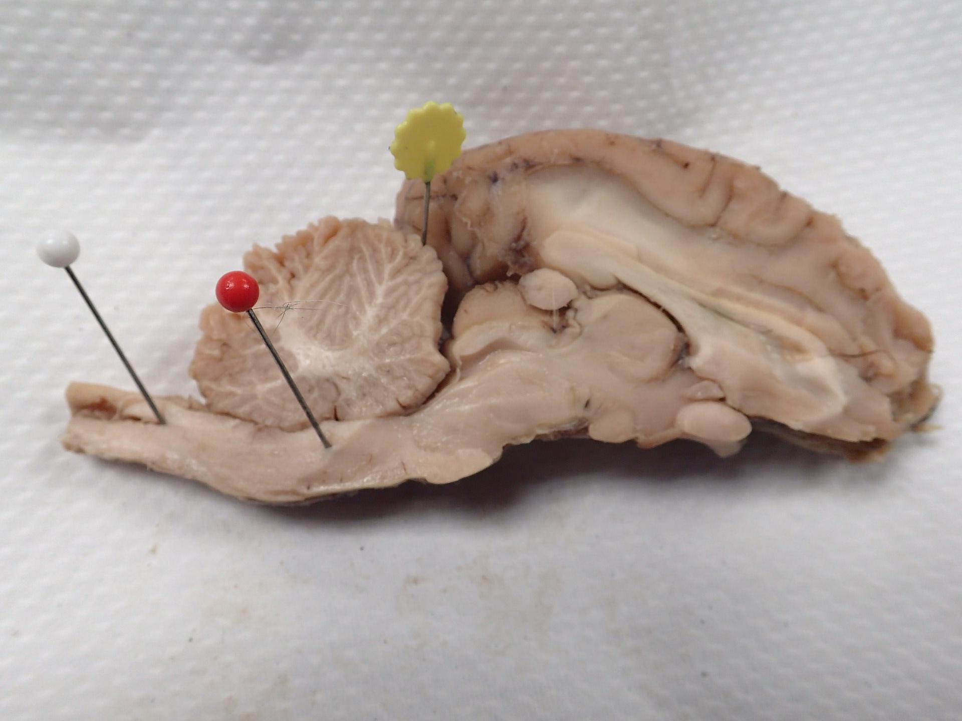 Sheep Brain Dissection | Anatomy Corner