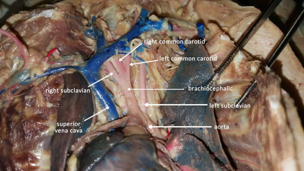 aortic-arch-vessels-labeled