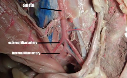 artery_internal_iliac