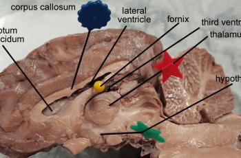 brachiocephalic artery in cats  anatomy corner