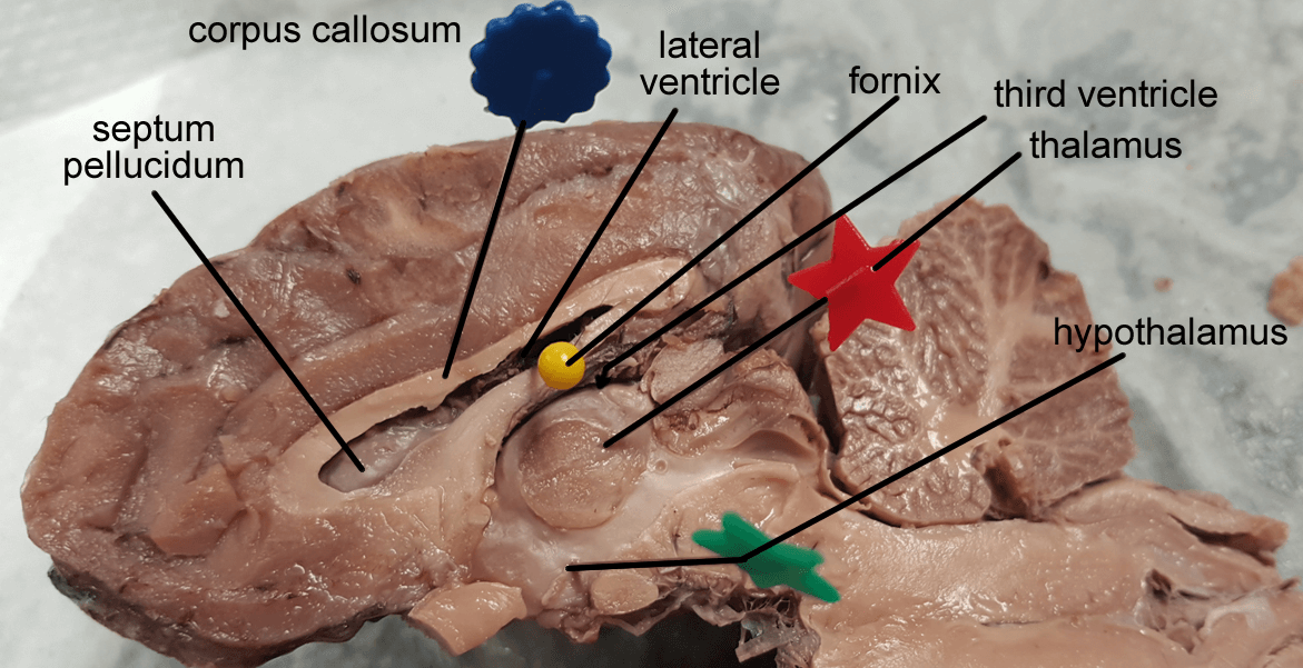 Fornix Sheep Brain Dissection Diagram - Auto Electrical Wiring Diagram •