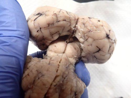 brain-pineal-posterior