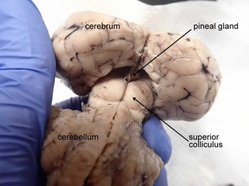 brain-pineal-posterior-labeled