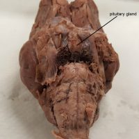 brain with pituitary