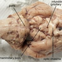 optic chiasma