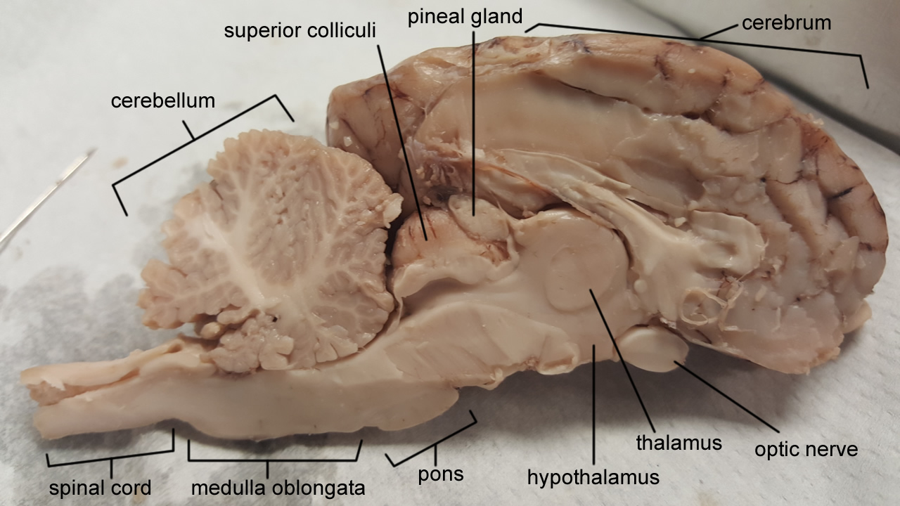 Brain Stem | Anatomy Corner