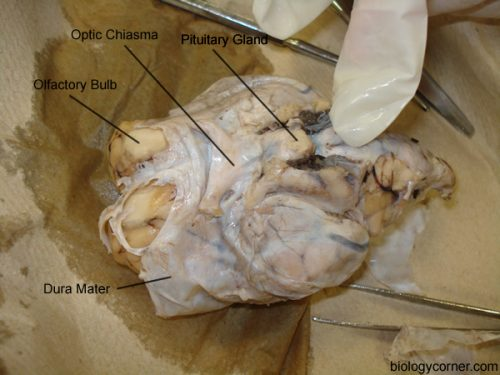 Dura Mater Intact, Structures Labeled