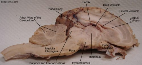 Lateral View of Brain, Labeled