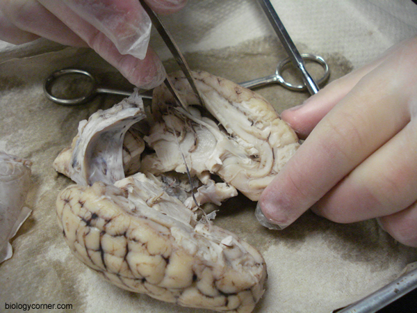 Brain Dissection, Showing Lateral Ventricle