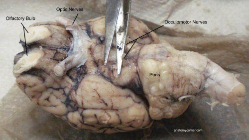 Occulomotor Nerves, Pons, Optic Chiasma