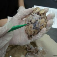 brain_dissect14