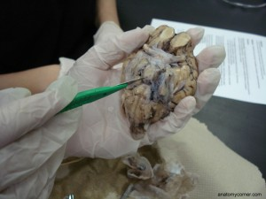 Pituitary Gland is Intact after Removal of Dura Mater
