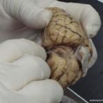 Brain, Dorsal Side