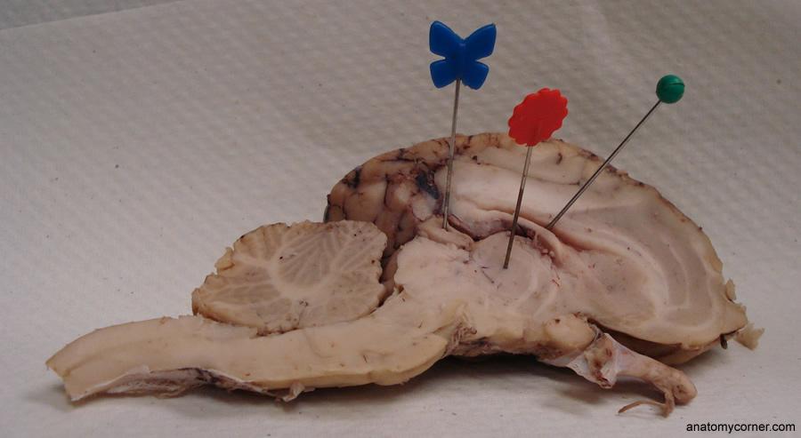 Sheep Brain Anatomy Corner