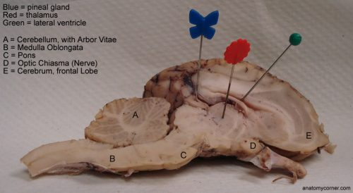 Sheep Brain:  Ventricles, Cerebellum, Pons, Medulla (lateral view)