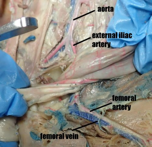 cat-femoral-artery