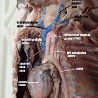 Heart and Aorta