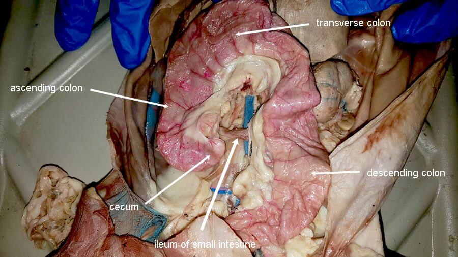Ascending, Transverse, Descending Colon | Anatomy Corner