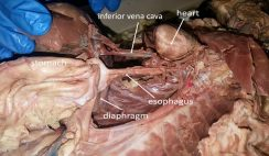 esophagus and vena cava
