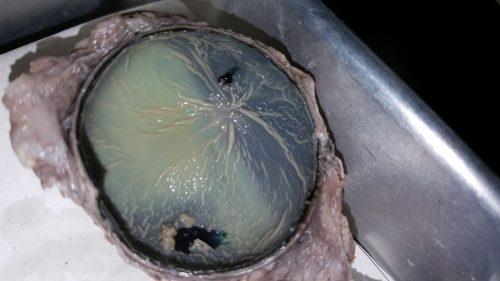 eye-optic-disk