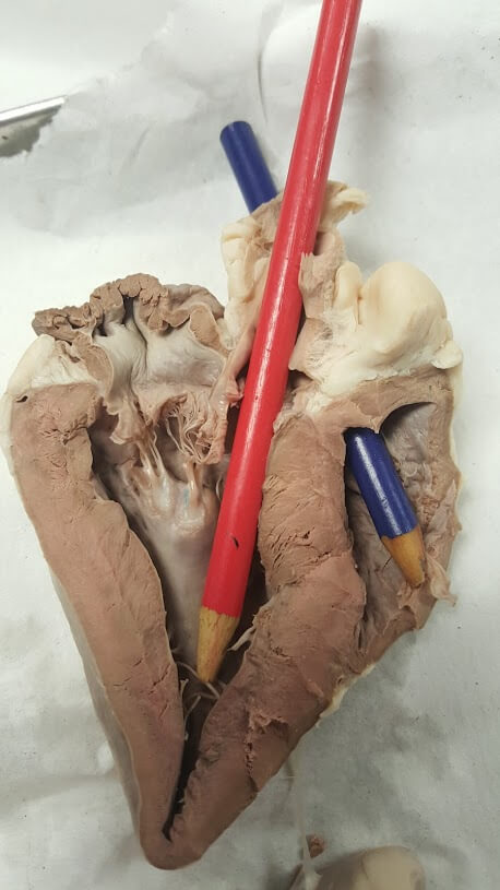 heart-aorta-internal