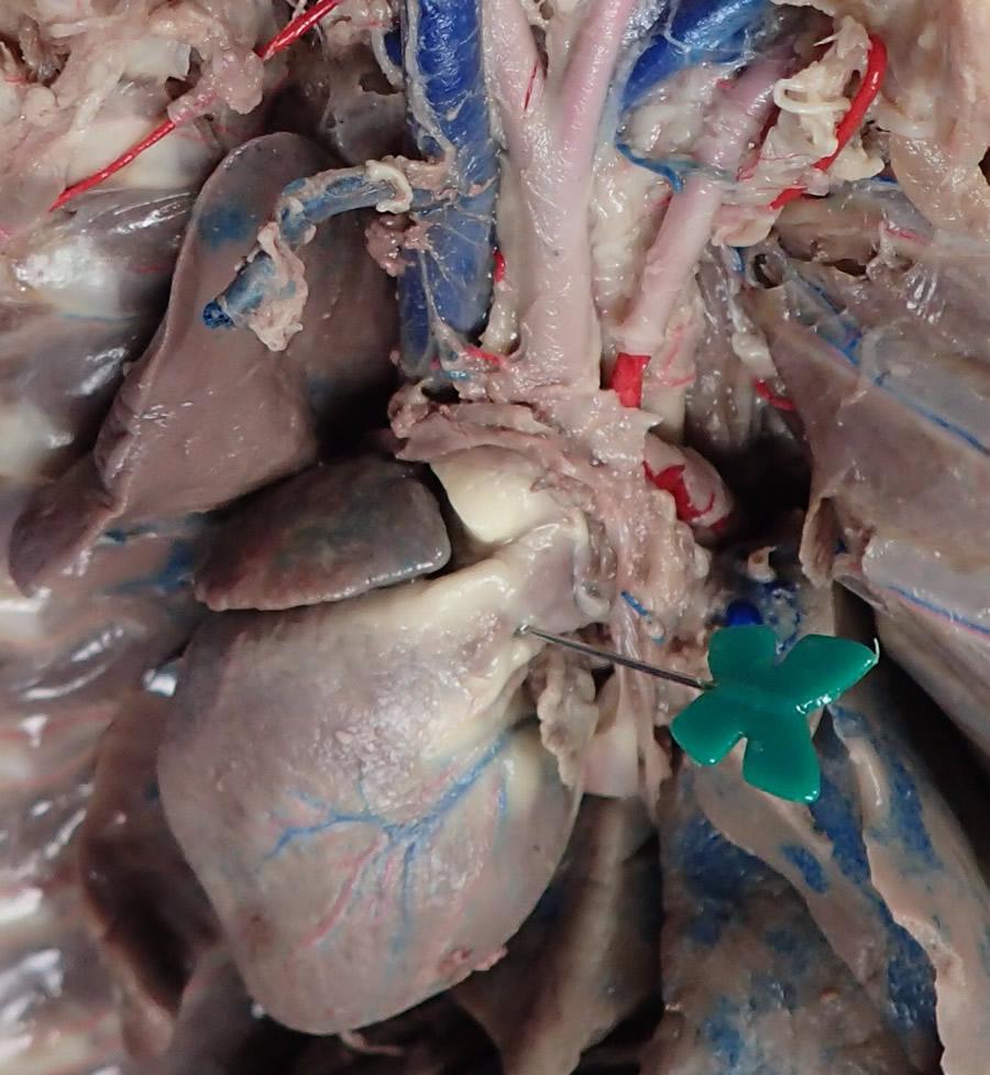heart-pulmonary-trunk