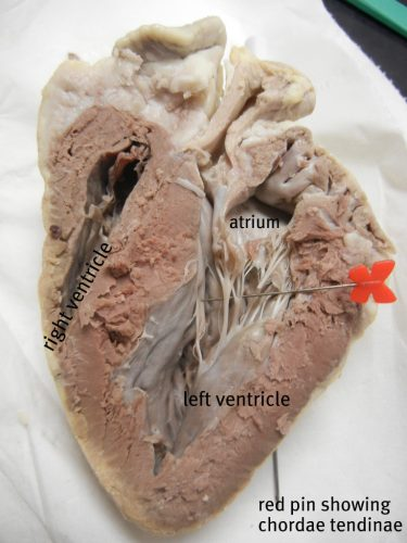 heart_ventricle_pin_labeled