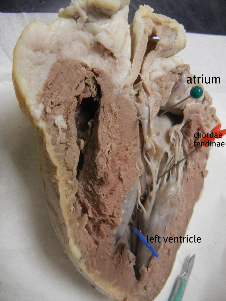 Sheep Heart Dissection Anatomy Corner
