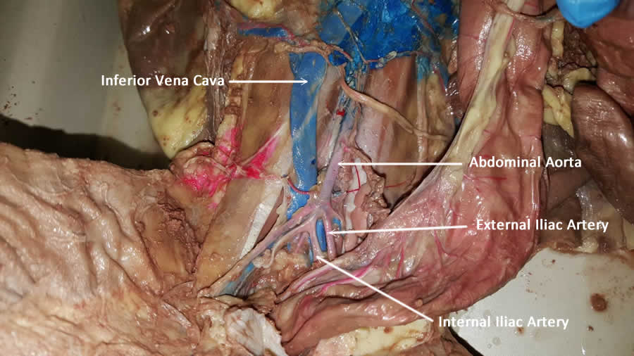 iliac-artery-labeled