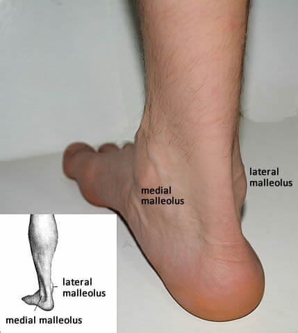 Picture suggestion for Lateral Ankle