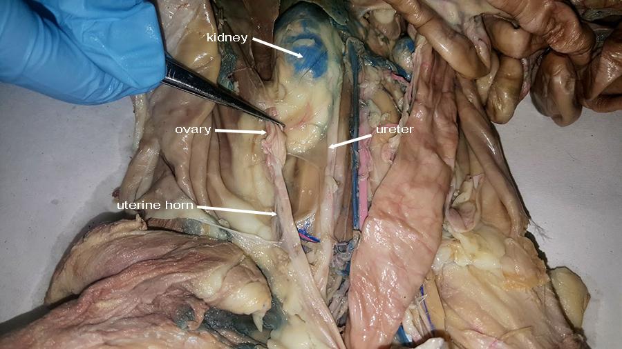 Uterine Horns Anatomy Corner