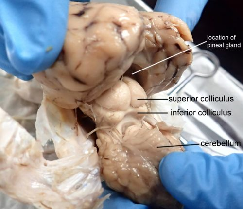 superior colliculus labeled