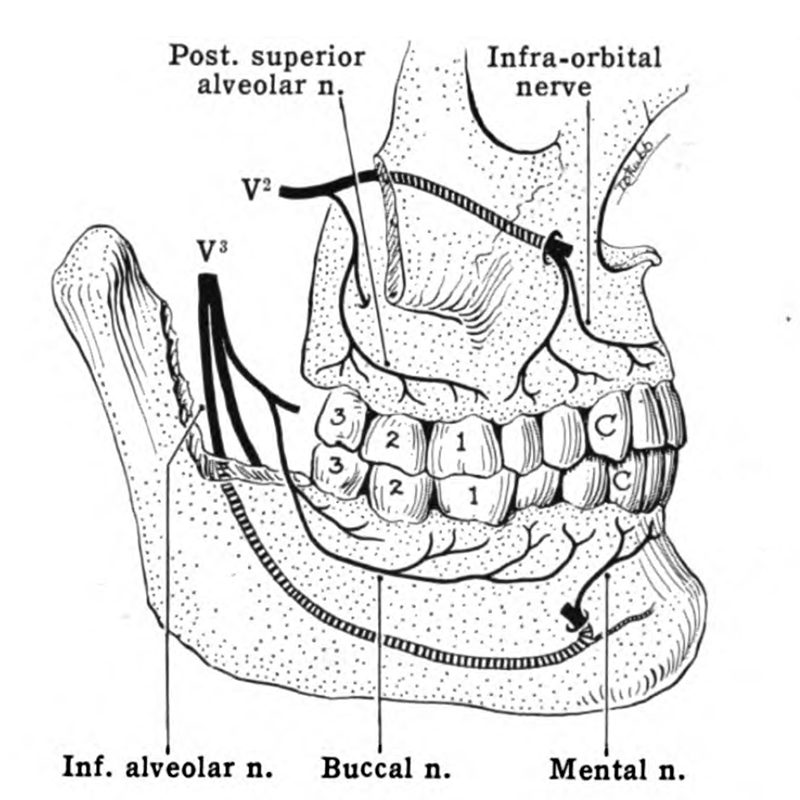 Trigeminal Nerve And Wisdom Teeth