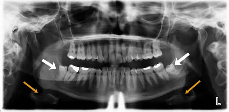 Trigeminal Nerve And Wisdom Teeth